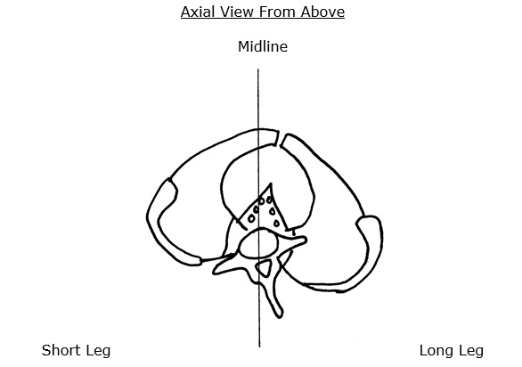 counter-rotational stresses on the L5-S1 disc